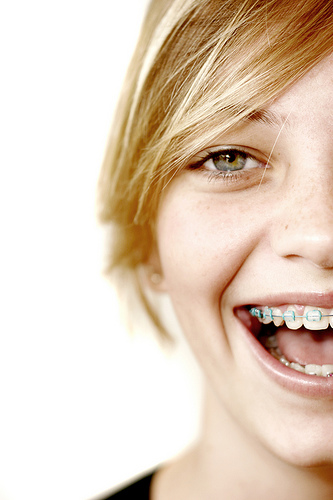 Fitting Braces into Your Life